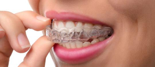 Appareillage orthodontique