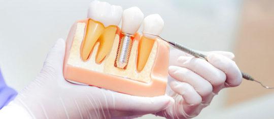 Implant dentaire à Paris 12